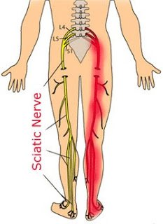 Sciatic Nerve Pain